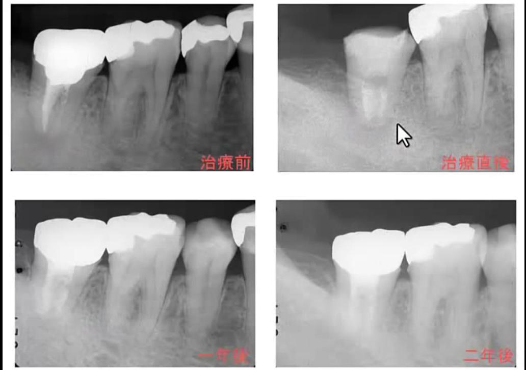 出典:マツモト歯科医院