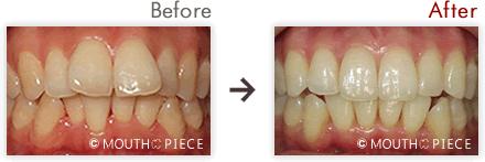 出典:https://k-dentalclinic.jp/