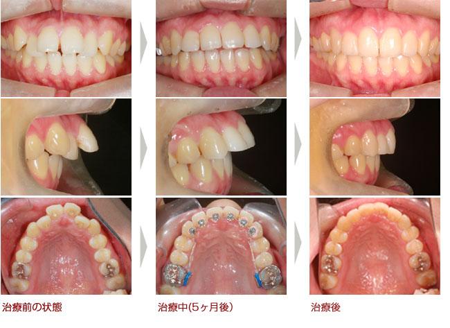 出っ歯 部分矯正 裏側