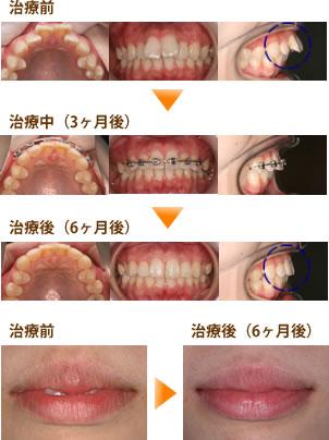出っ歯 表側部分矯正2