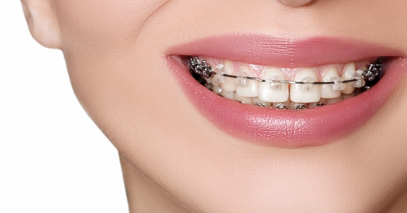 Teeth with Braces, Dental Care concept, front view. Smile with Sapphire braces.  Orthodontic treatment.