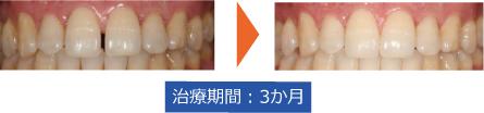 スターアラインすきっ歯