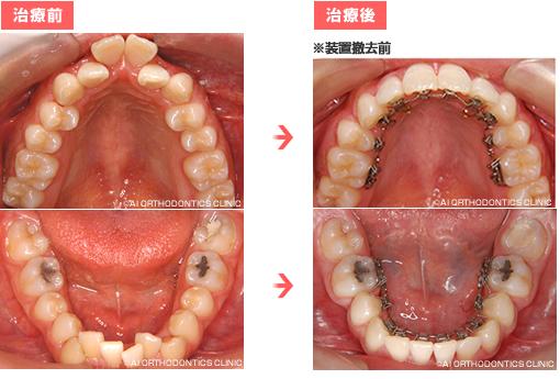 出典:矯正歯科ネット